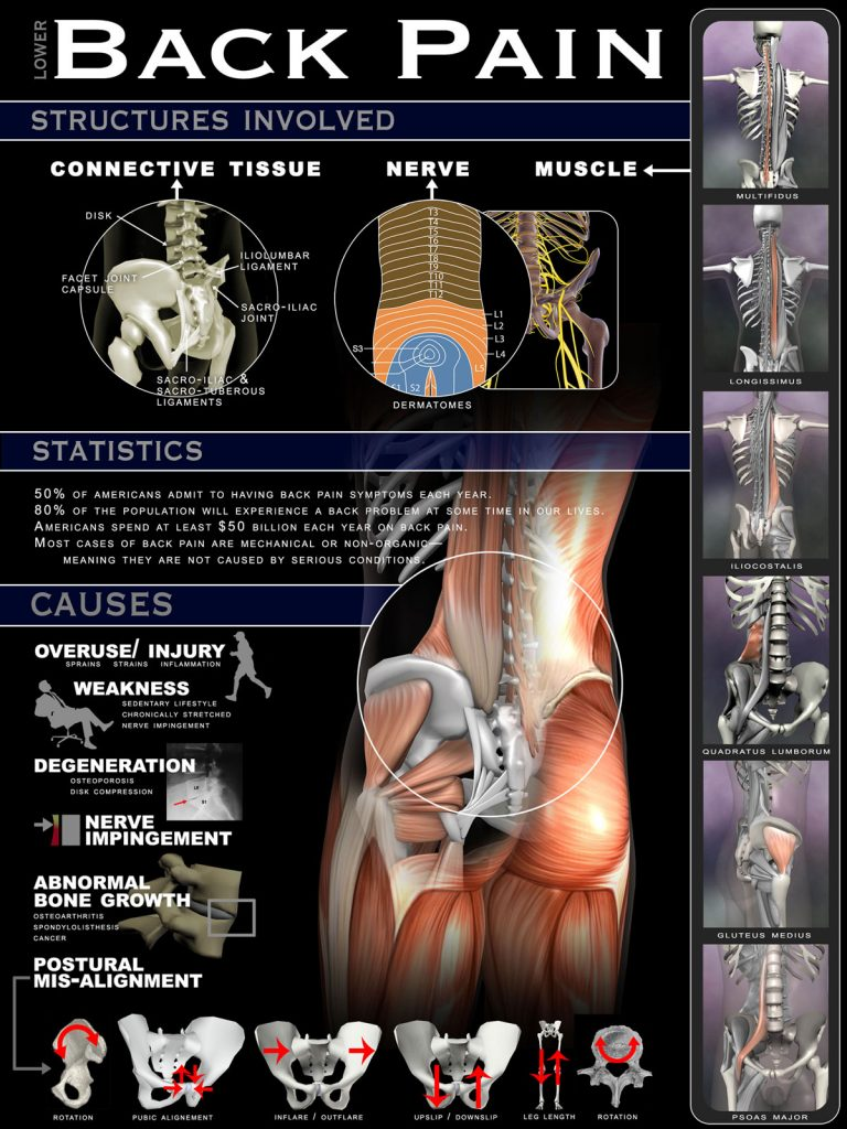 Whole Body Vibration for Lower Back Pain infographic